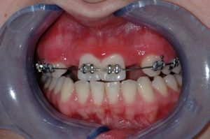 Dental Implants - Single