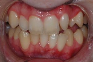 Teeth Whitening - Before