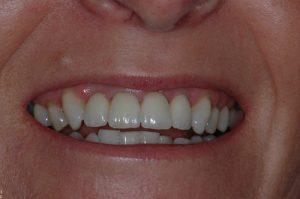 Implant supported bridge - Teeth For Life!