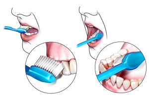 Good tooth brushing technique