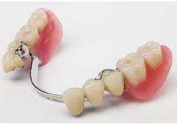 Wangaratta Partial Dentures