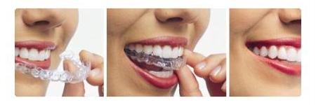 Tooth Whitening Wangaratta