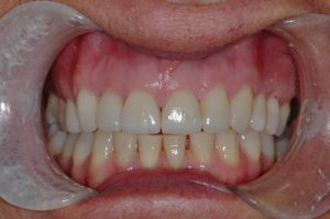Porcelain Crowns and Veneers - After