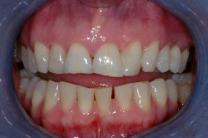 Porcelain Crowns and Veneers - Before