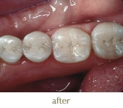 After photo - new tooth coloured fillings